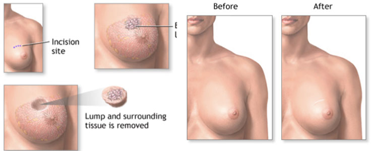 Why do you need a Breast Lump Removal?