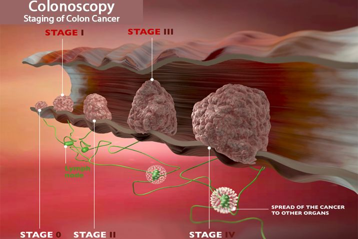 infographic of different stages of colorectal cancer