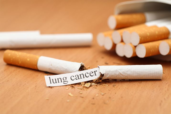 quit smoking helps prevent lung cancer