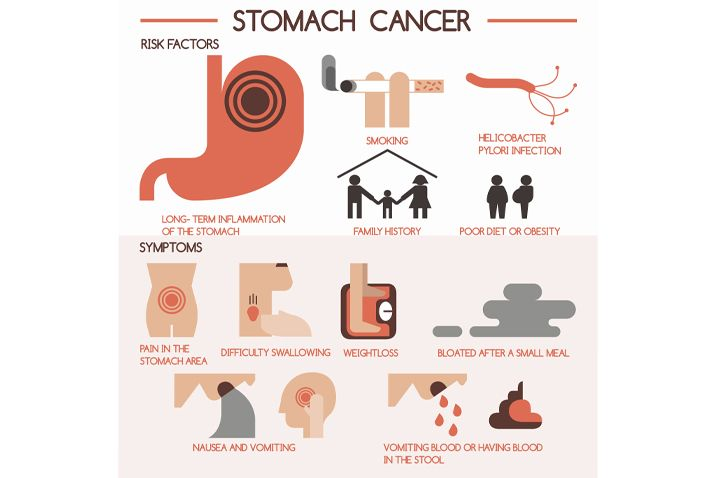 causes and symptoms of stomach cancer
