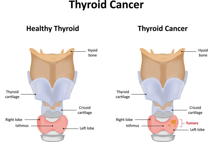infographic showing a cancerous thyroid and a healthy thyroid