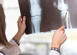 3 Common Scans to Check Your Bones and Joints