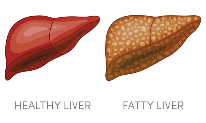 Fatty liver vs healthy liver