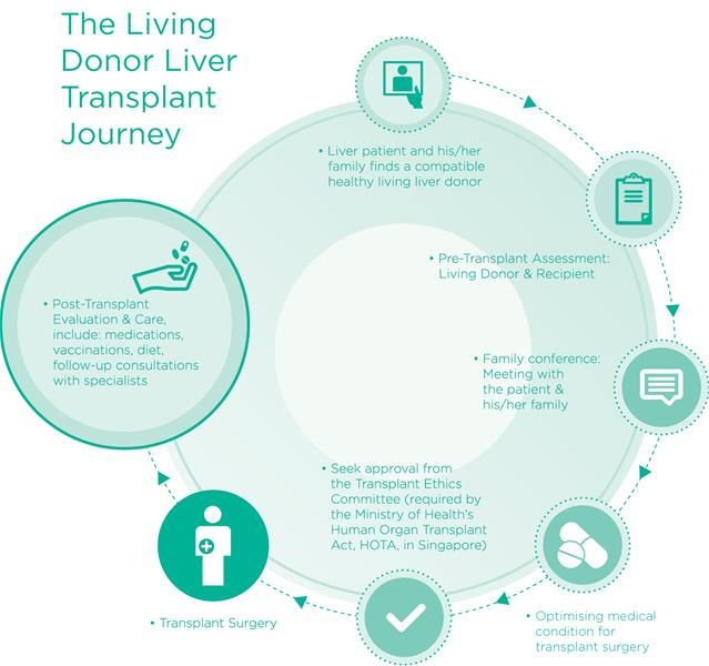 infographic showing stages of living donor liver transplant journey